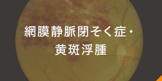 網膜静脈閉そく症・黄斑浮腫